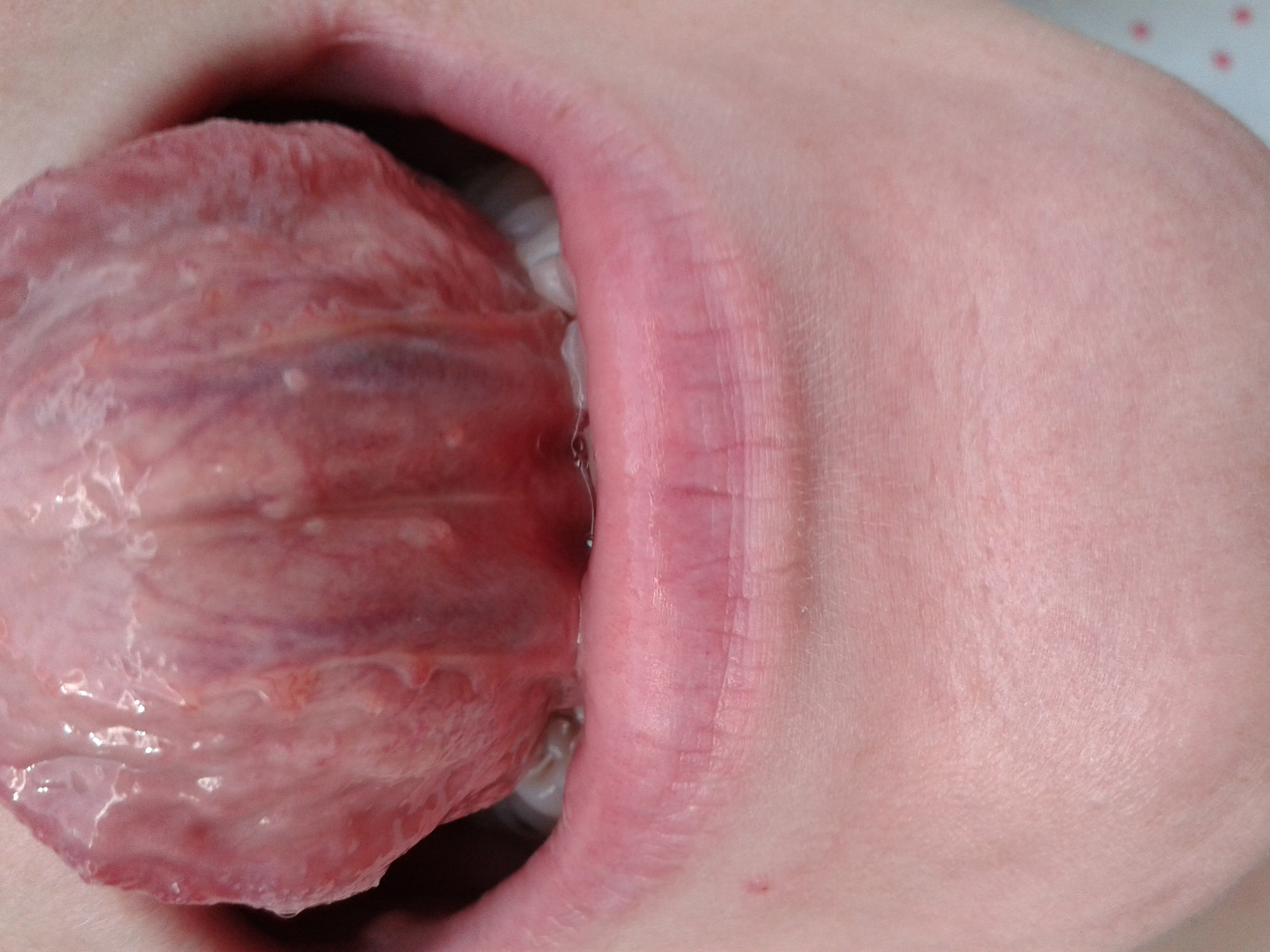 I Have Recently Noticed Some Bumps On The Underside Of My Tongue