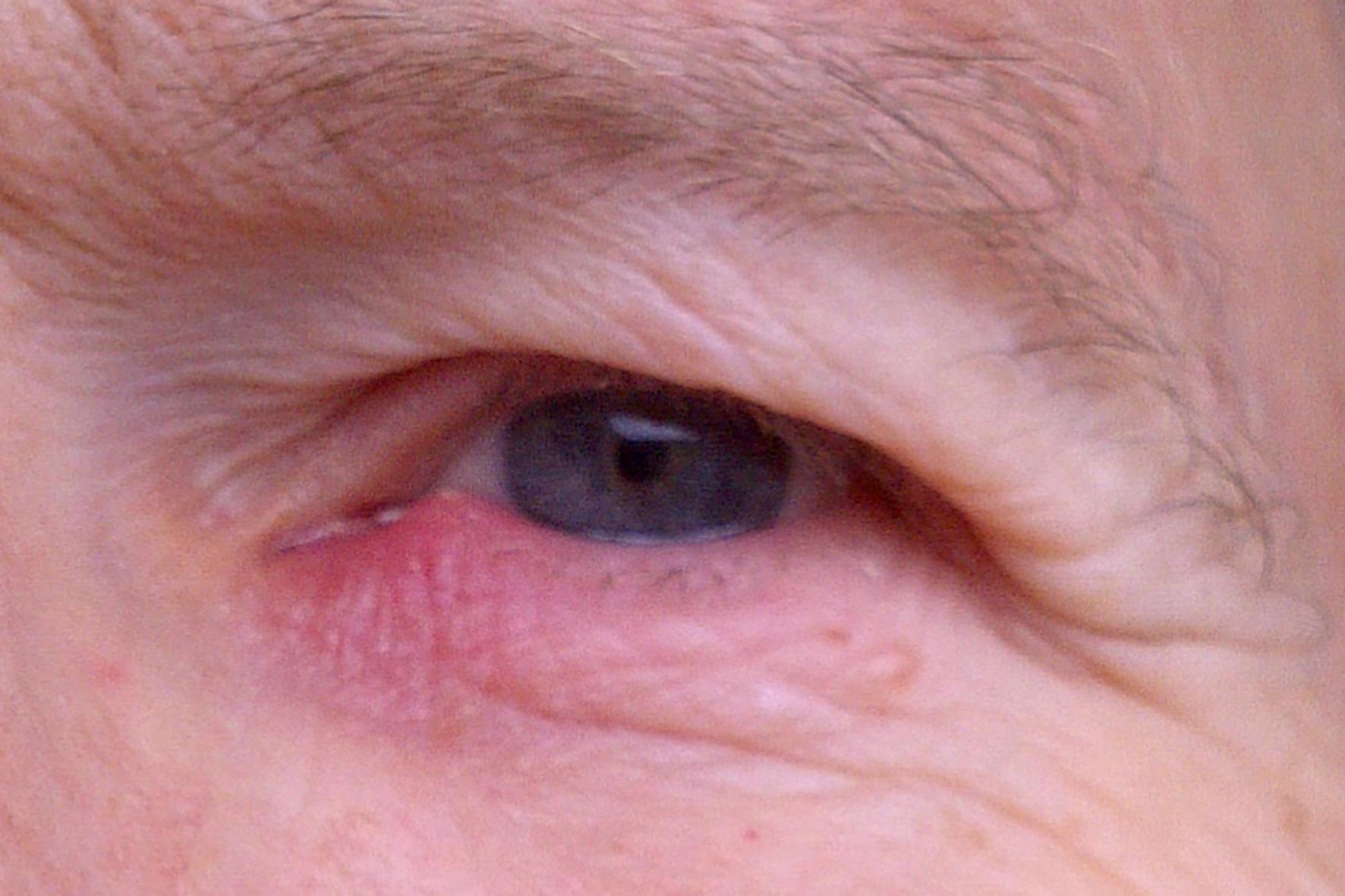 Mein unteres Augenlid ist am Rand (näher in Nasenrichtung)