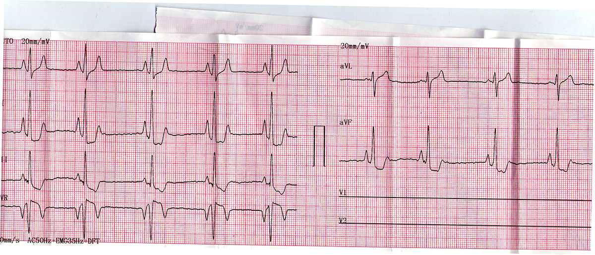 her ECG result (today)